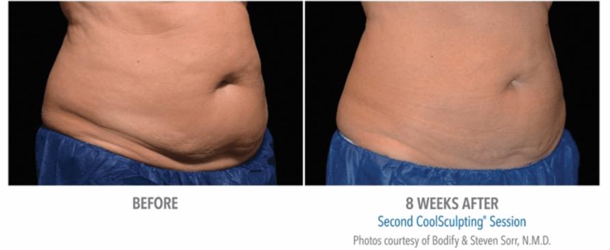 female-belly-1