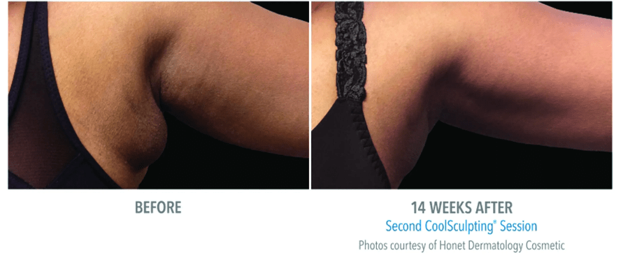female-bra-1